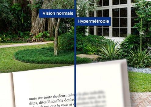 Vision d'un hypermétrope