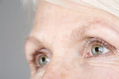 Symptôme Oeil cataracte