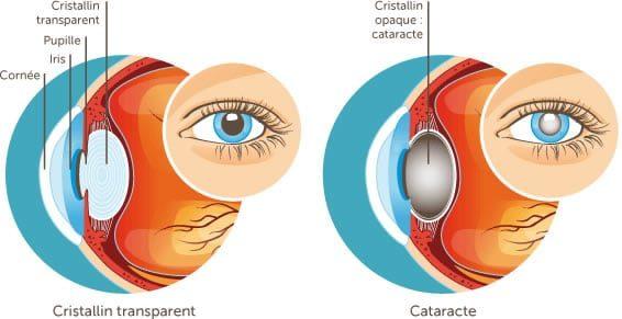 Opération cataracte et traitement